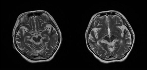 双侧基底节区、放射冠、半卵圆中心、侧脑室旁及额颞顶叶见多发斑片状异常信号,T1WI呈稍低信号,T2WI呈稍高信号,FLIAR呈稍高及低信号,DWI呈低信号,右侧半卵圆中心可见结节样高信号。SWI:双侧额颞顶叶皮层及皮层下、基底节区、放射冠见多发斑片状、结节样低信号