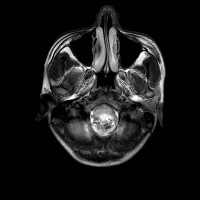 小脑蚓部及小脑半球见不规则状异常信号影,T1WI呈低信号,T2WI呈高信号,可见低信号分隔,FLAIR呈稍高信号,DWI呈低信号,增强扫描呈明显不均匀强化