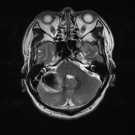 右侧小脑半球见团片状异常信号,T1WI呈低信号,T2WI呈低信号,FALIR呈低信号,周围脑实质见水肿信号,大小约4.1 cmX3.0 cm,四脑室受压变窄。增强扫描未见强化,右侧乙状窦走行于下方;右侧乳突近桥小脑角区另见片状等T1长T2信号