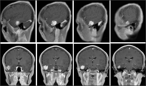 右侧颞叶类圆形长T1稍长T2信号影,信号均匀, DWI肿瘤弥散未受限,增强扫描均匀明显强化,邻近脑膜强化, PWI肿瘤呈低灌注 。