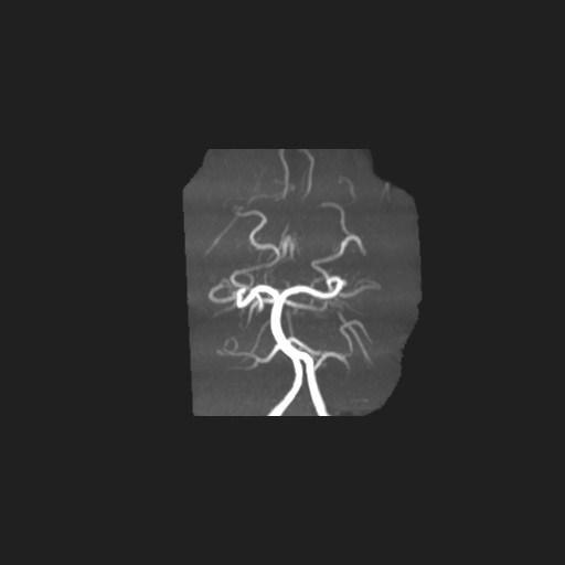 右侧放射冠、双侧额叶顶叶皮层及白质见多发斑片状稍长T1稍长T2信号,FLAIR呈稍高信号,DWI呈稍高信号,ADC map呈高信号,增强扫描病灶未见明显强化,但相应区域增强扫描可见多发迂曲小血管影,SWI呈低信号。