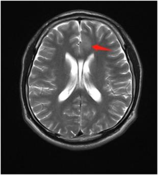 左侧额叶扣带回前部皮质增厚,皮质白质分界不清,呈稍长T1、稍长T2信号,FLAIR呈稍高信号,DWI及ADC呈稍高信号