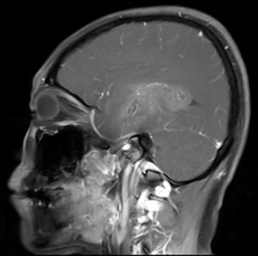 右侧颞叶见不规则形异常信号,T1WI呈低信号,T2WI呈高信号,水抑制成像呈不均匀高信号,大小约5.7x7.0x5.1cm,增强扫描后呈轻度不均匀强化。右侧脑室及脑干明显受压变小,中线结构向左侧移位