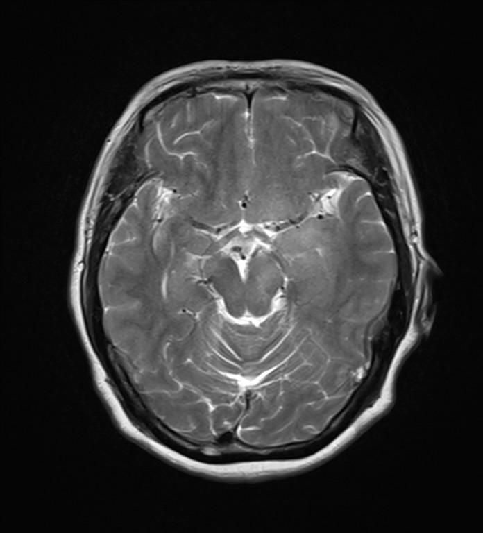 左侧大脑脚、丘脑、基底节区、放射冠见团块状等及稍长T1稍长T2异常信号,FLAIR呈稍高信号,轻度弥散受限,增强后其内见多发结节状、环状强化,大小约0.5-1.9cm,桥脑、右侧基底节、双侧放射冠、额叶见斑片状等及长T1长T2信号,FLAIR呈高信号,脑室受压向右侧移位