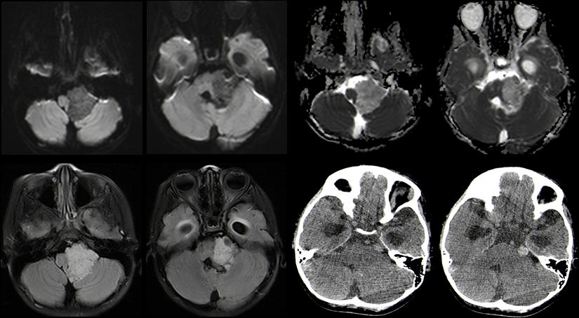 左侧桥小脑角区实性占位,呈分叶状,边界清楚,CT平扫等密度,其内混杂高密度钙化灶