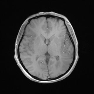 左侧额颞顶叶脑回增厚,脑沟变浅,灰白质分界不清,呈稍长T1稍长T2信号,FLAIR呈稍高信号,DWI呈稍高信号,ADC图呈等信号。左侧侧脑室后角旁见结节样异常信号,与灰质信号一致